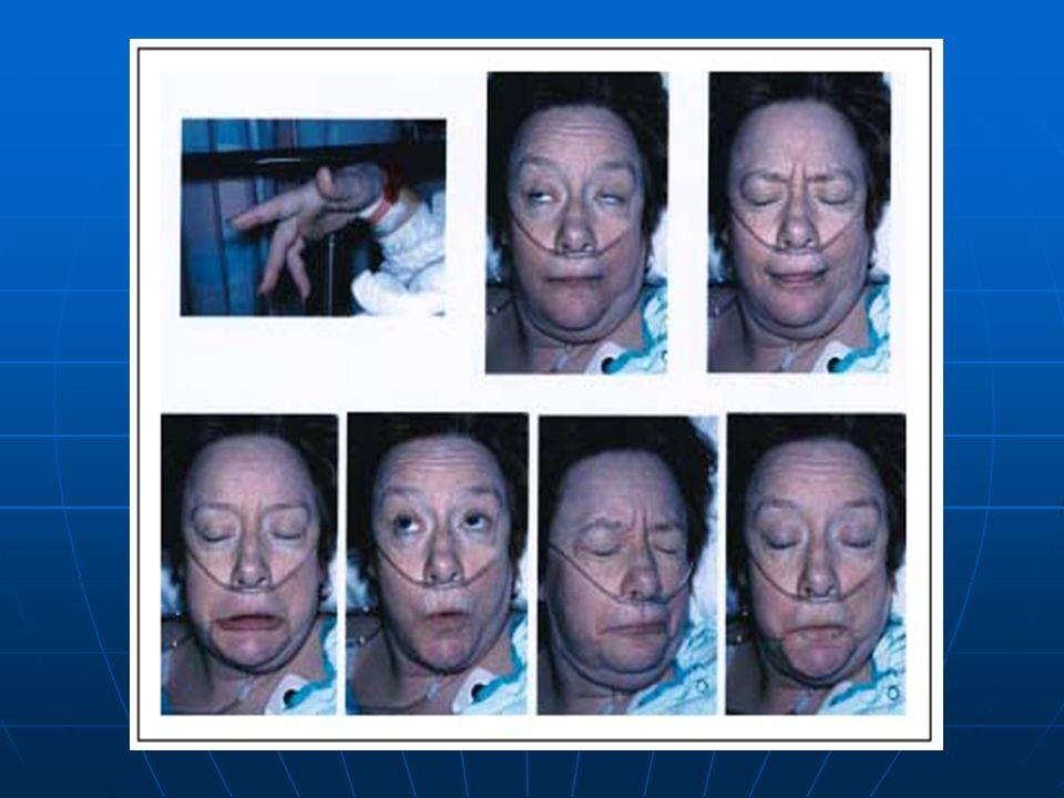 Acute Dystonias Intervention.