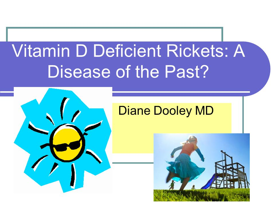 Vitamin D Deficient Rickets: A Disease of the Past