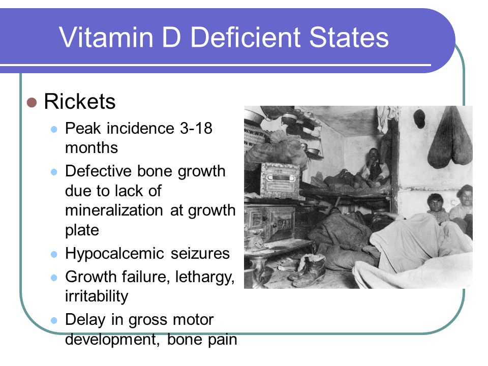 Vitamin D Deficient States