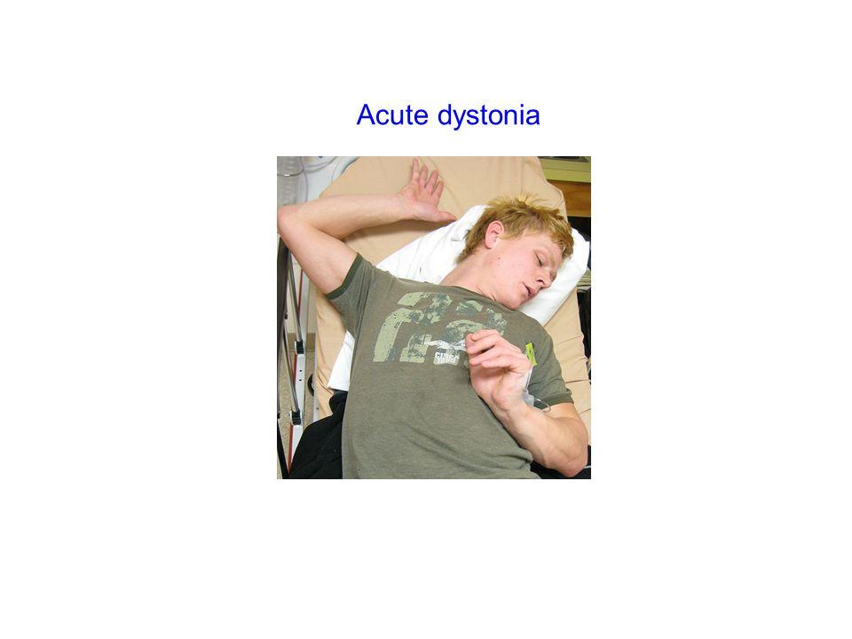 Acute dystonia