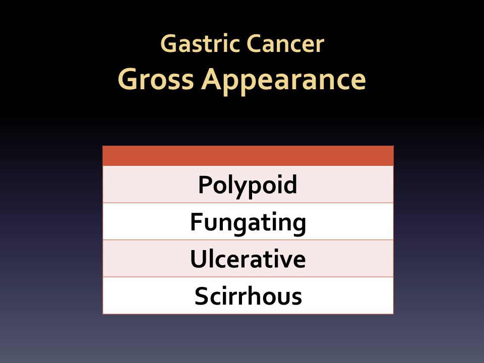 Gastric Cancer Gross Appearance