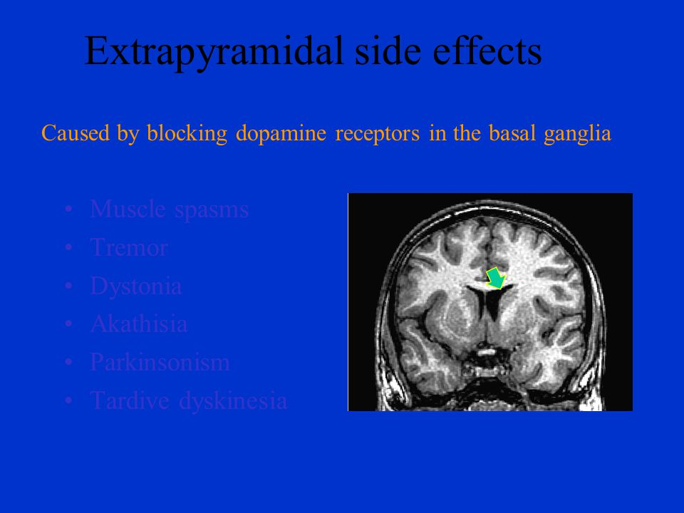 Extrapyramidal side effects