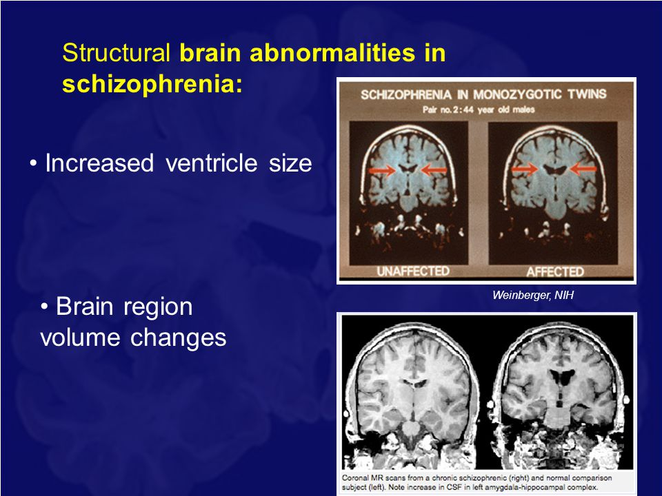 Structural brain abnormalities in schizophrenia: