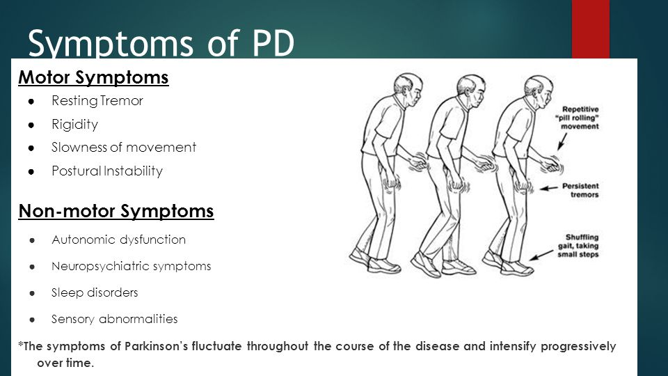 Diagnosis of PD Diagnosed through clinical assessment based
