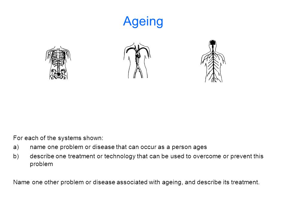 Ageing For each of the systems shown:
