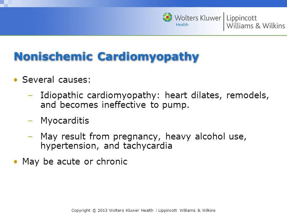 Nonischemic Cardiomyopathy
