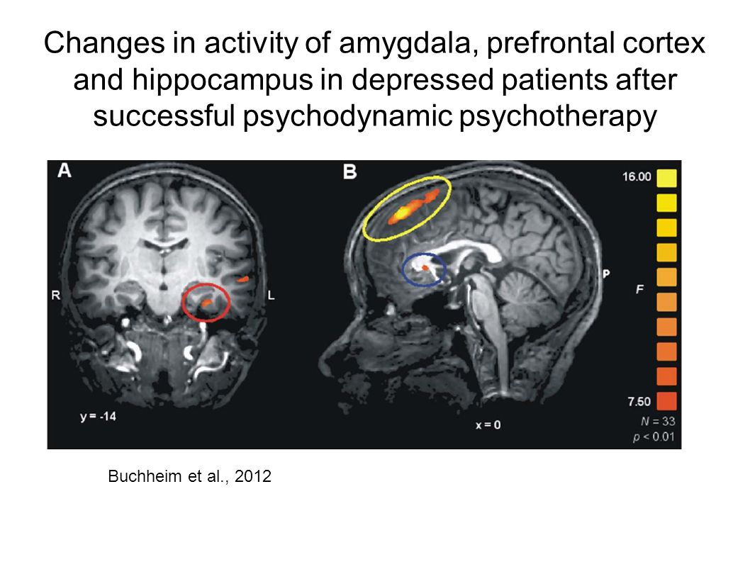 Changes in activity of amygdala, prefrontal cortex and hippocampus in depressed patients after successful psychodynamic psychotherapy