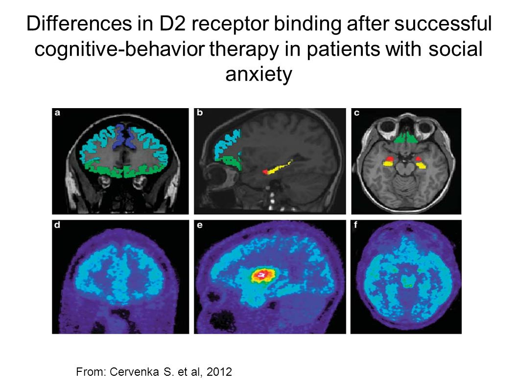 Differences in D2 receptor binding after successful cognitive-behavior therapy in patients with social anxiety