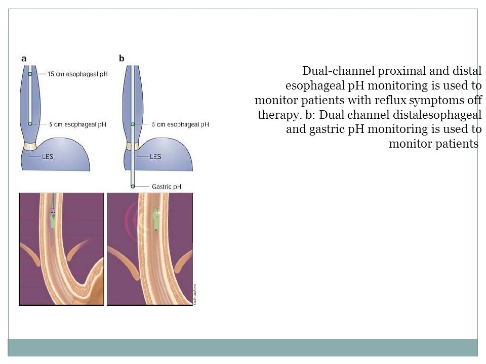 Dual-channel proximal and distal esophageal pH monitoring is used to monitor patients with reflux symptoms off therapy.