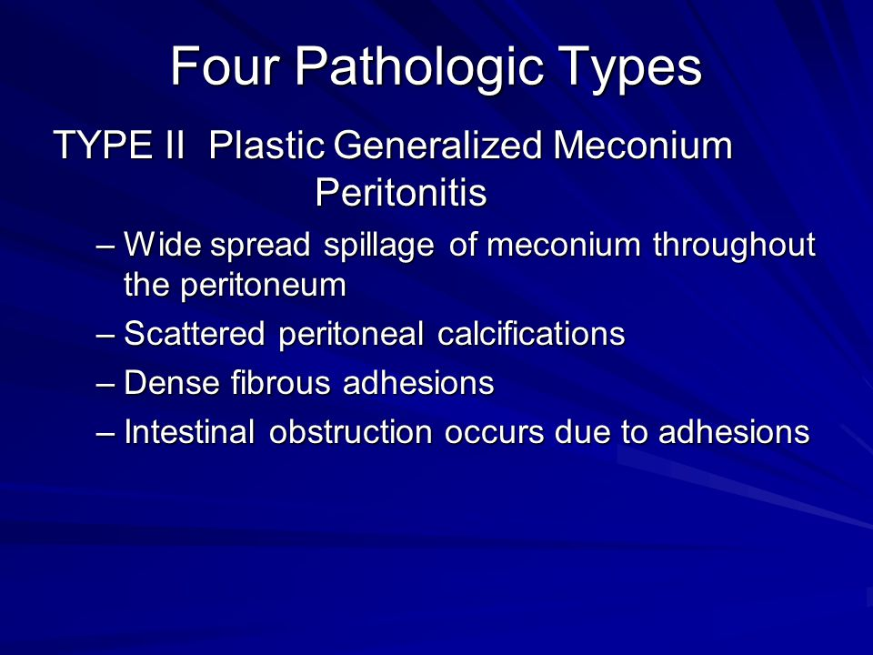 Four Pathologic Types TYPE II Plastic Generalized Meconium Peritonitis