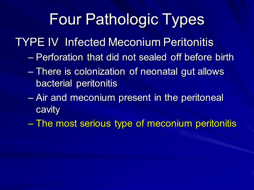 Four Pathologic Types TYPE IV Infected Meconium Peritonitis