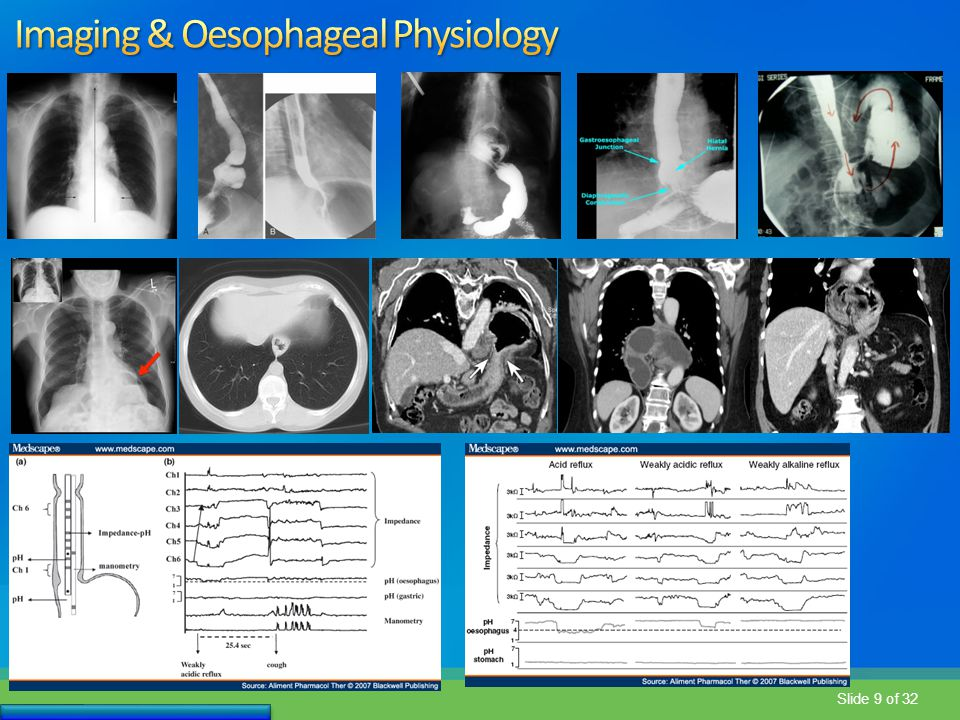 Imaging & Oesophageal Physiology