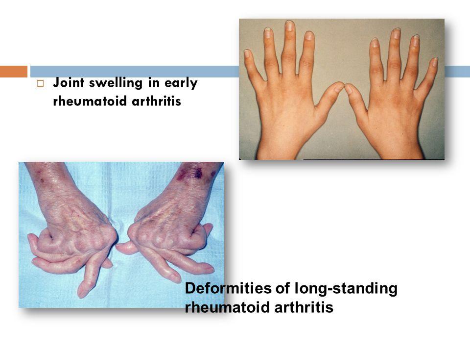 Joint swelling in early rheumatoid arthritis