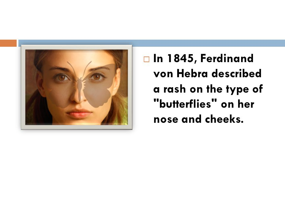 In 1845, Ferdinand von Hebra described a rash on the type of butterflies on her nose and cheeks.