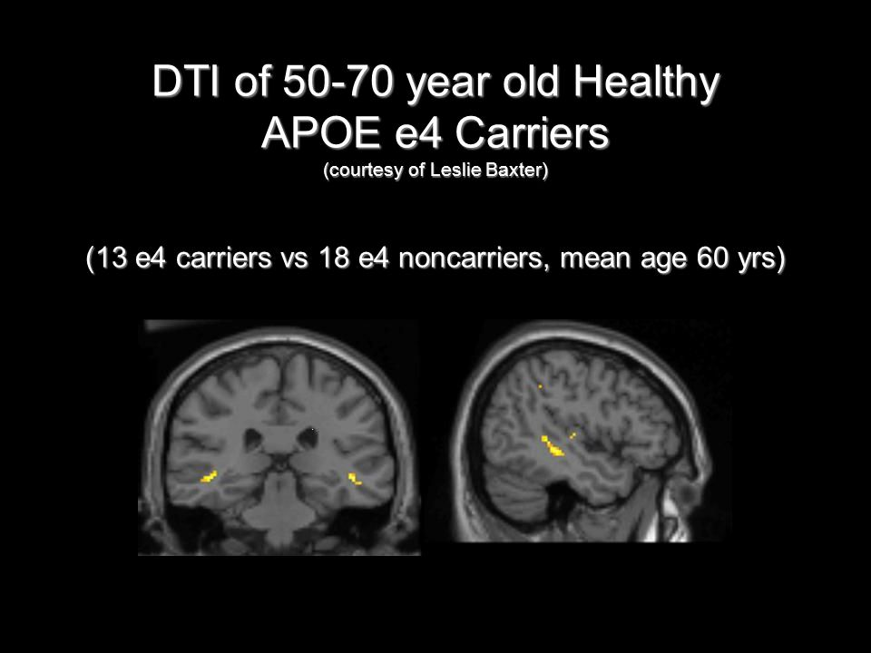 DTI of 50-70 year old Healthy APOE e4 Carriers (courtesy of Leslie Baxter) (13 e4 carriers vs 18 e4 noncarriers, mean age 60 yrs)