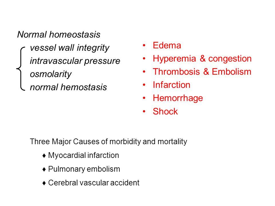 intravascular pressure osmolarity normal hemostasis Edema