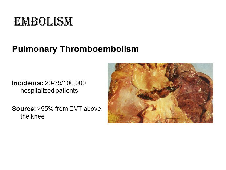 Embolism Pulmonary Thromboembolism