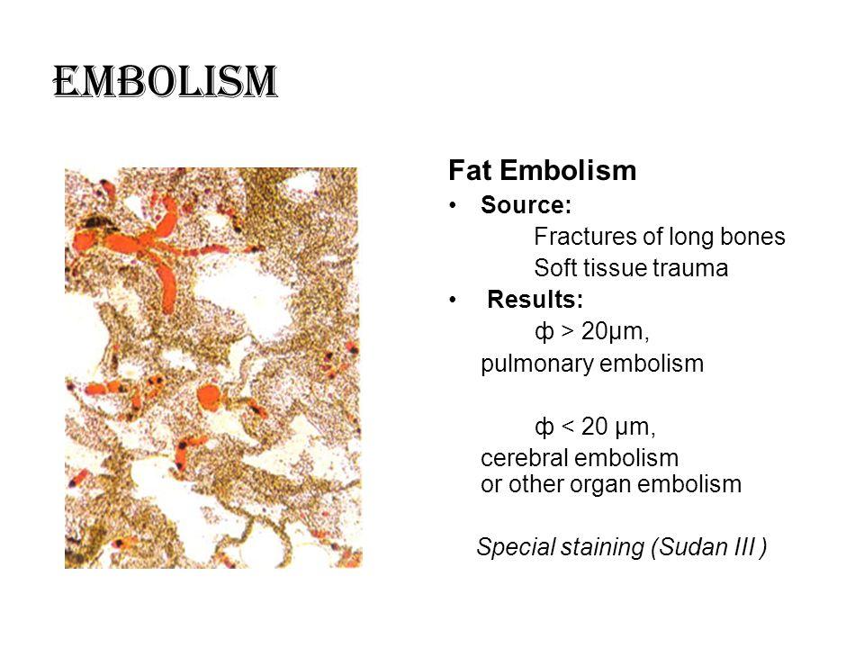 Embolism Fat Embolism Source: Fractures of long bones