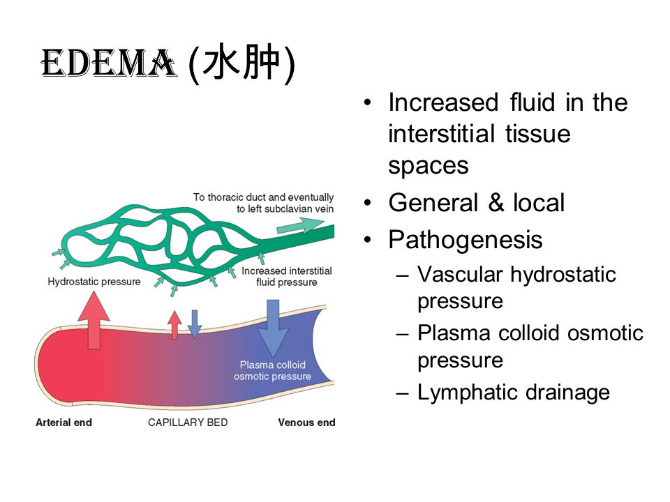 EDEMA (水肿) Increased fluid in the interstitial tissue spaces