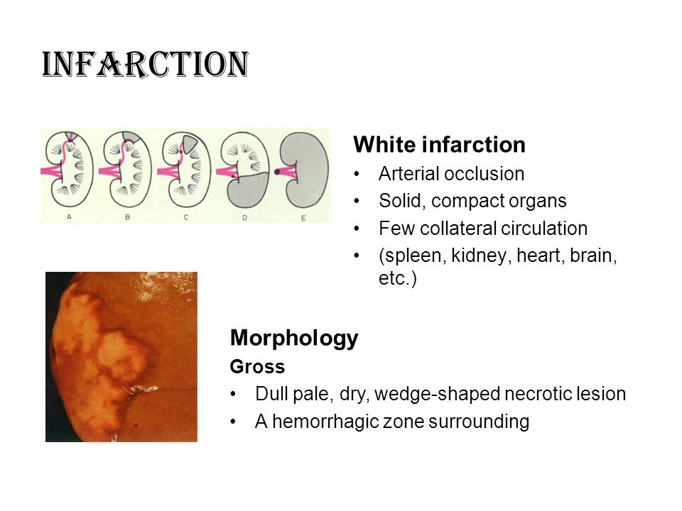 INFARCTION White infarction Morphology Arterial occlusion