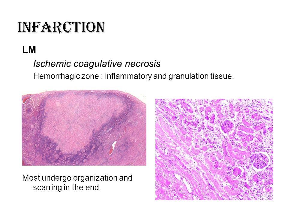 INFARCTION LM Ischemic coagulative necrosis