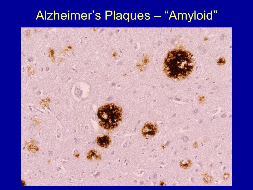 Alzheimer's Plaques – Amyloid