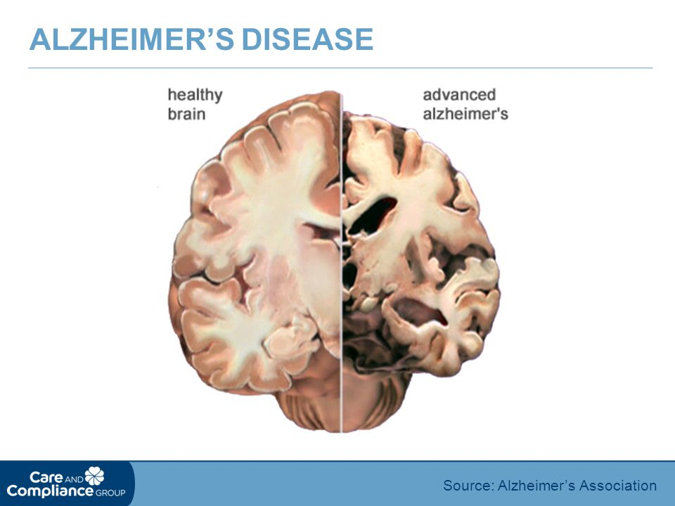Alzheimer's Disease Source: Alzheimer's Association