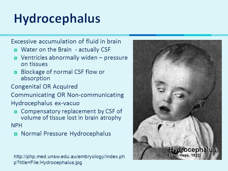 Hydrocephalus Excessive accumulation of fluid in brain