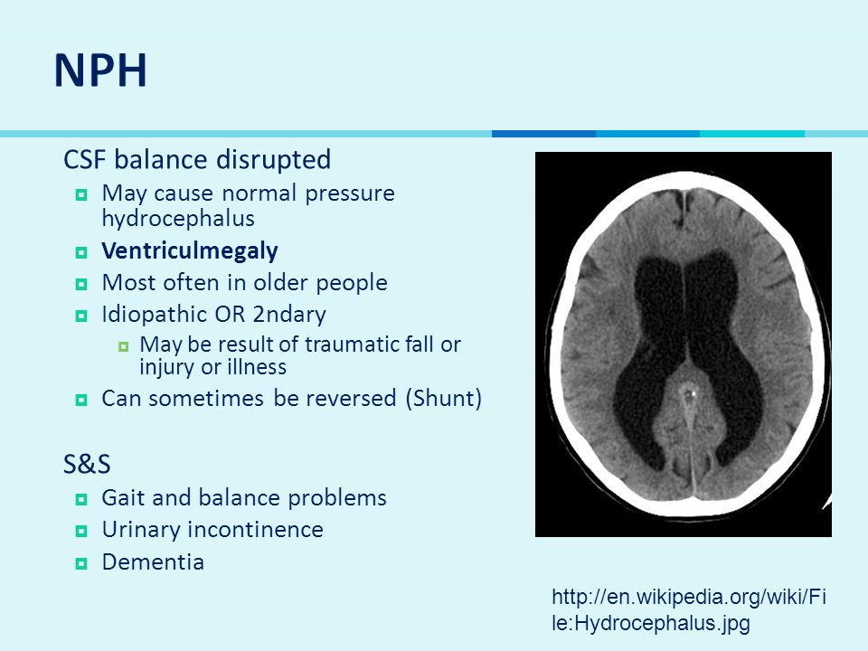 NPH CSF balance disrupted S&S May cause normal pressure hydrocephalus
