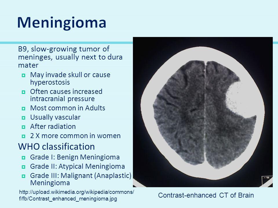 Meningioma WHO classification