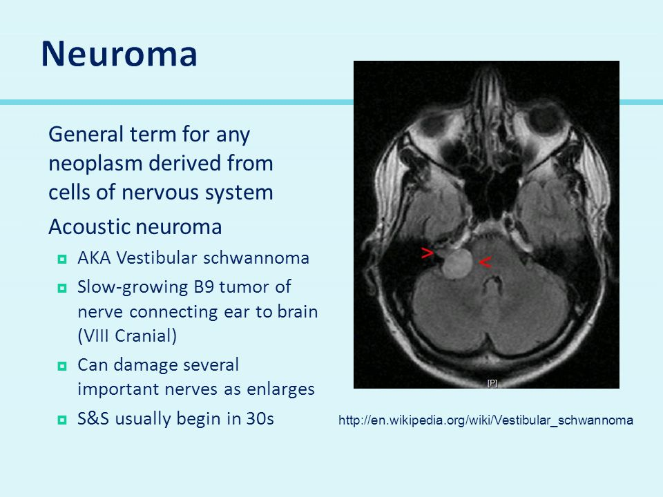 Neuroma General term for any neoplasm derived from cells of nervous system. Acoustic neuroma. AKA Vestibular schwannoma.