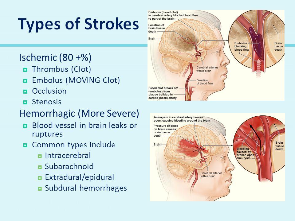 Types of Strokes Ischemic (80 +%) Hemorrhagic (More Severe)