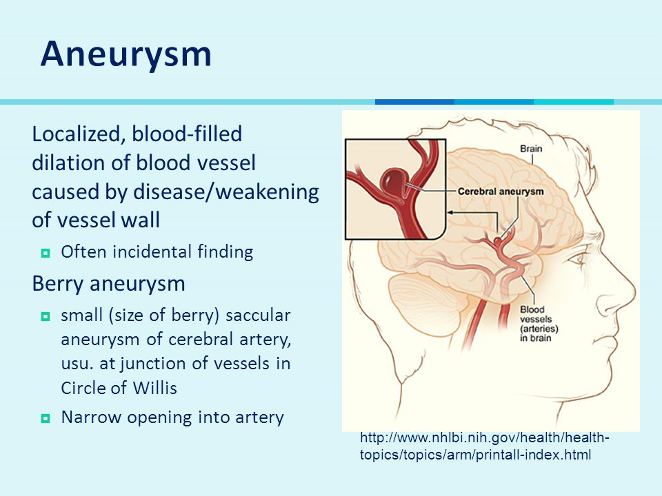 Aneurysm Localized, blood-filled dilation of blood vessel caused by disease/weakening of vessel wall.