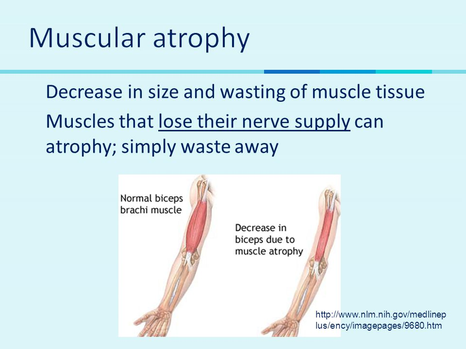 Muscular atrophy Decrease in size and wasting of muscle tissue