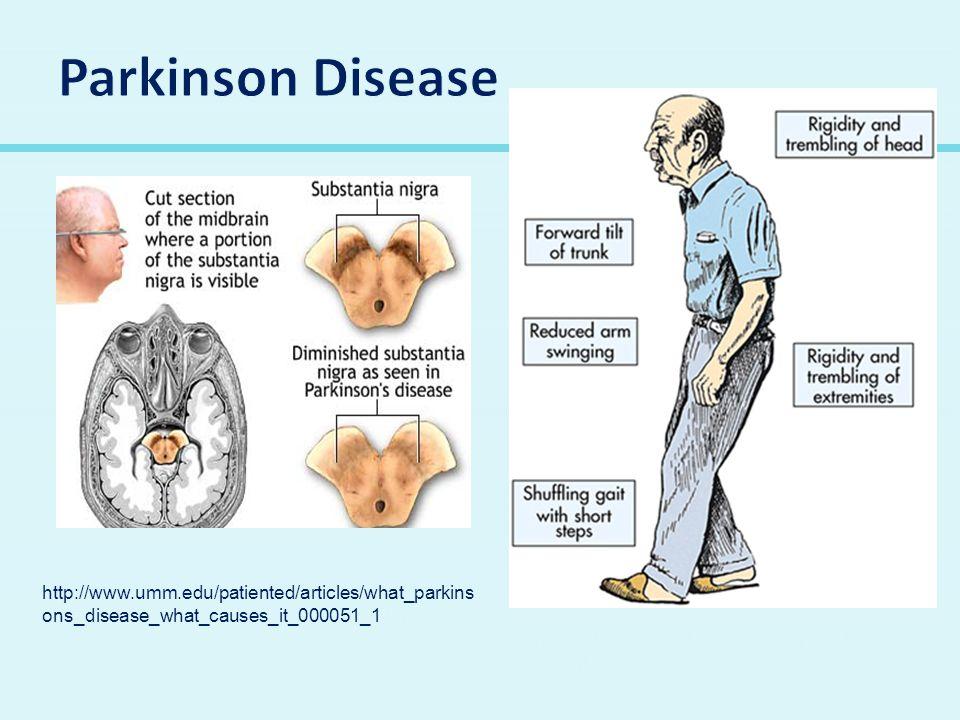 Parkinson Disease http://www.umm.edu/patiented/articles/what_parkinsons_disease_what_causes_it_000051_1.htm.