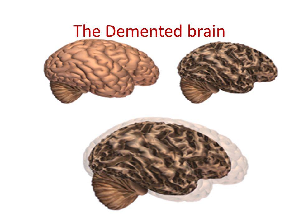 The Demented brain