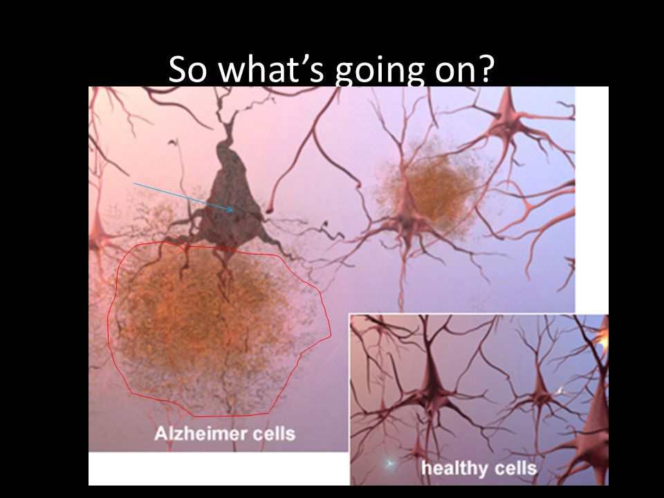 So what's going on Alzheimer s tissue has many fewer nerve cells and synapses than a healthy brain.
