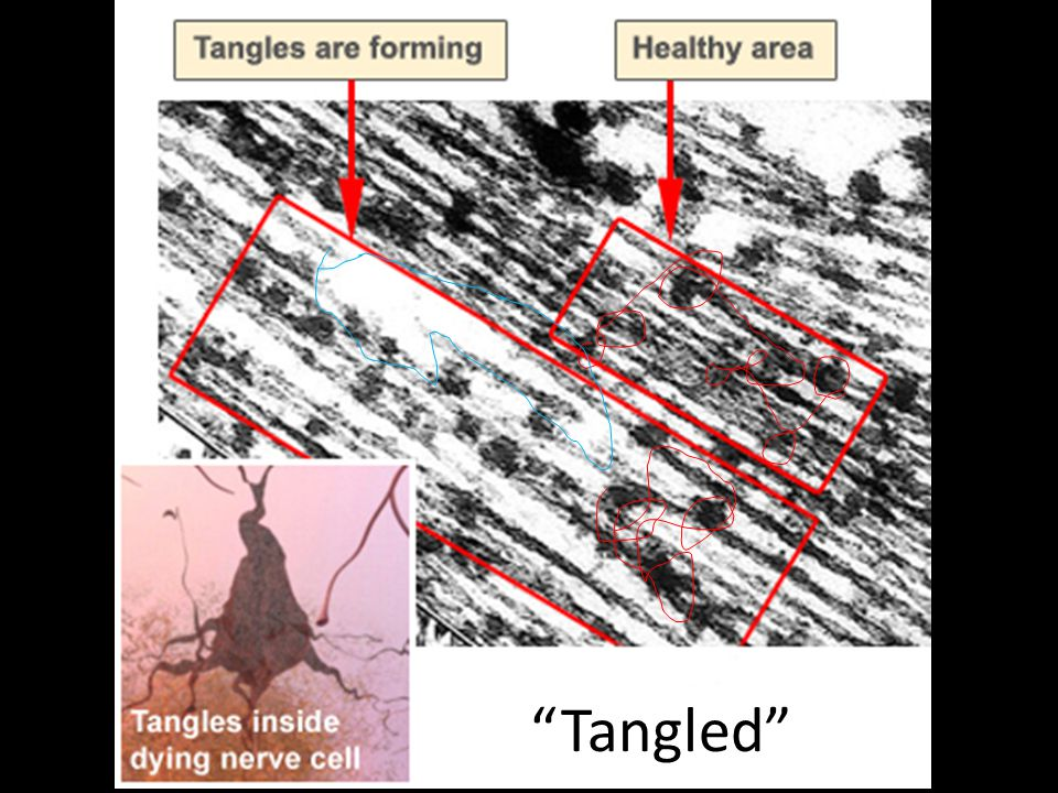 Tangles destroy a vital cell transport system made of proteins.