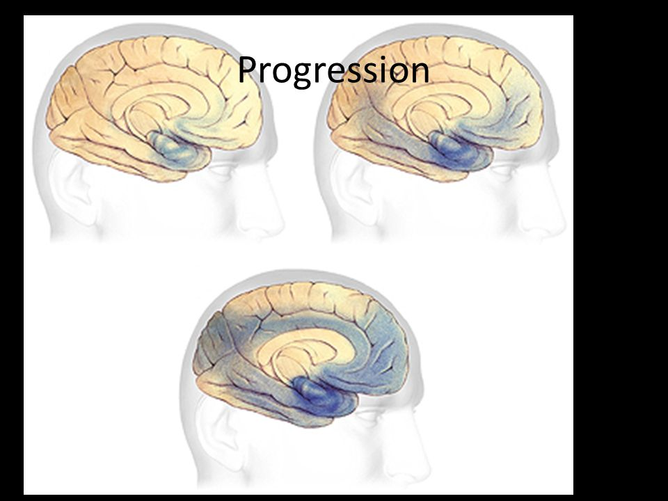 Progression Plaques and tangles spread through the cortex in a predictable pattern as Alzheimer s progresses.