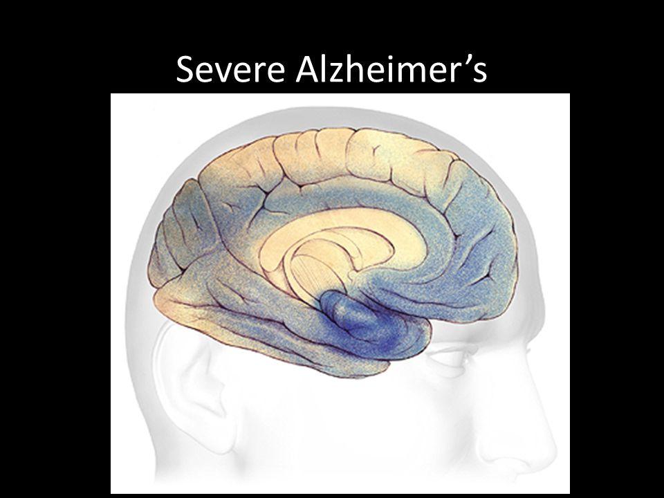 Severe Alzheimer's