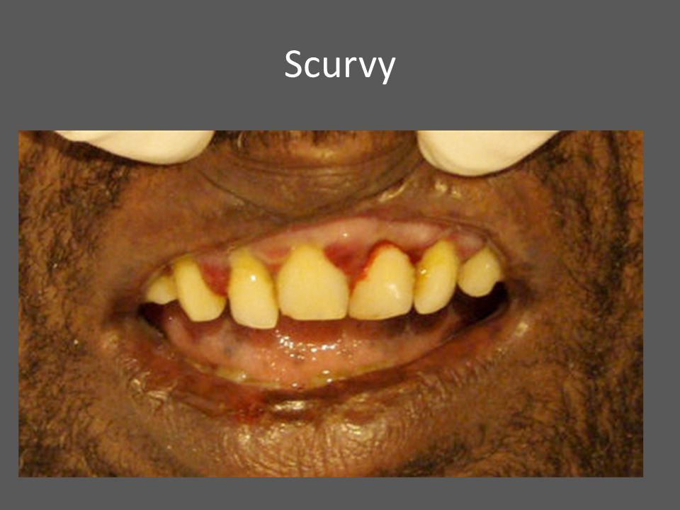 Scurvy Enzymes that impairs wound healing