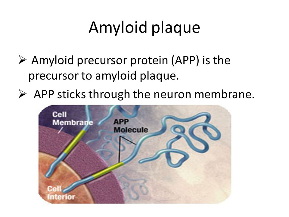 Amyloid plaque Amyloid precursor protein (APP) is the precursor to amyloid plaque.