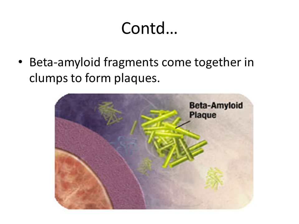 Contd… Beta-amyloid fragments come together in clumps to form plaques.