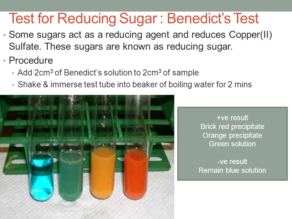 Test for Reducing Sugar : Benedict's Test