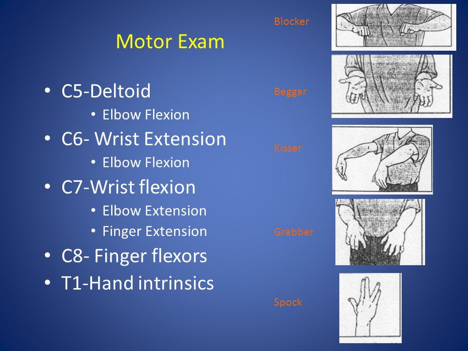 Motor Exam C5-Deltoid C6- Wrist Extension C7-Wrist flexion