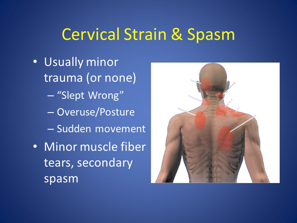 Cervical Strain & Spasm