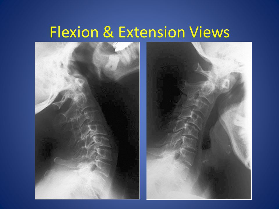 Flexion & Extension Views