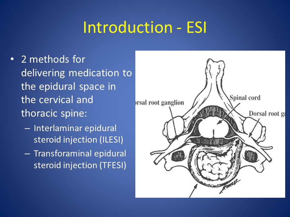 Introduction - ESI 2 methods for delivering medication to the epidural space in the cervical and thoracic spine: