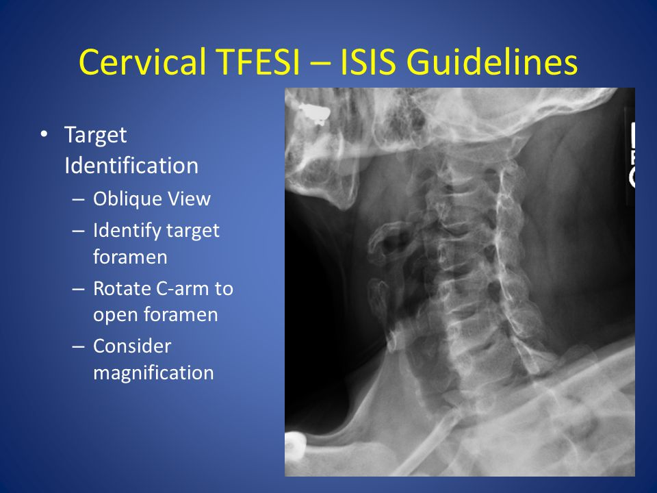 Cervical TFESI – ISIS Guidelines