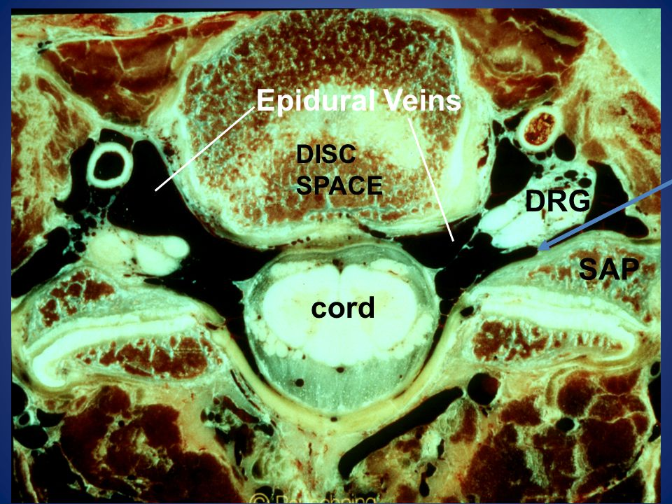 Epidural Veins DISC SPACE DRG SAP cord
